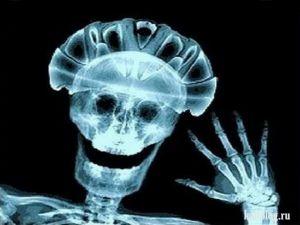 Прикольные рентгеновские снимки