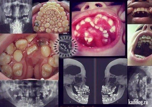 Cтомато фото